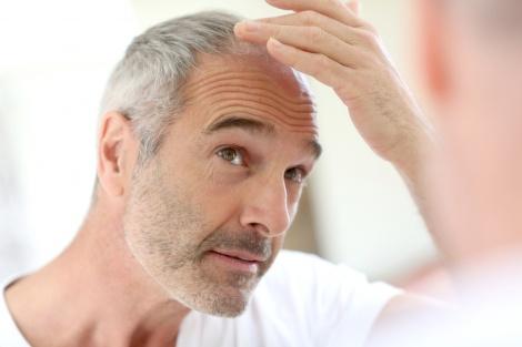 השיער שלכם מאפיר? גשו לבדיקת רופא