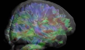 """""""פצצה מתקתקת"""": אירוע מוחי בגלל קורונה"""