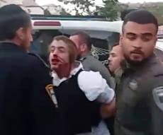 השוטר שהכה את האוטיסט החרדי לא ייחקר