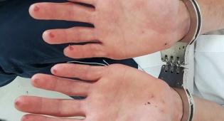 האצבעות שנחתכו למנוע זיהוי - עבר באדום, נמלט מהשוטרים ונפגע • צפו