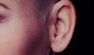 האוזן הוצמחה על הזרוע. אילוסטרציה