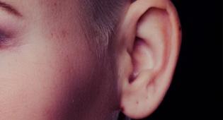 האוזן הוצמחה על הזרוע. אילוסטרציה - הליך נדיר: השתלת אוזן שגדלה על זרוע היד