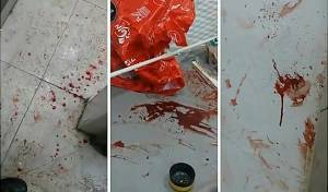צפו: דם בזירת הפיגוע, פשיטה ומעצרים