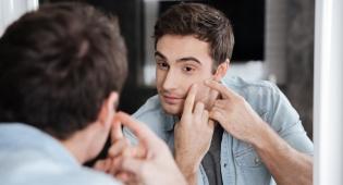האם יש להילחץ מנקודות לבנות על עור הפנים?