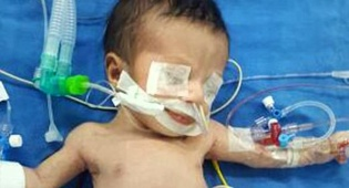 קארם - ניתוח חריג: גפיים מיותרים הוסרו מבן 7 חודשים