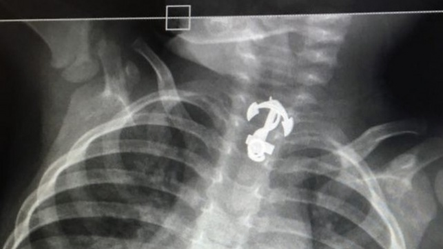 התליון כפי שנראה בבדיקת הרנטגן