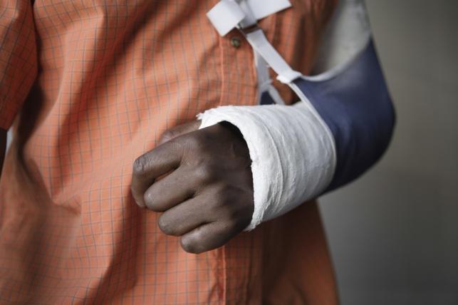 פצע את ידו בזמן עבודה. אילוסטרציה