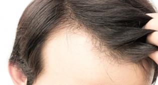 אילוסטרציה - מחקר חדש: אלו החודשים בהם סובלים יותר מנשירה