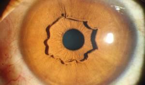 הגירוד בעין הוביל לתגלית המפתיעה הזו