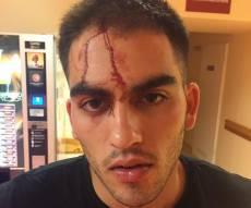הצעיר הישראלי החבול - תייר מצרי תקף צעיר יהודי שטייל בליטא