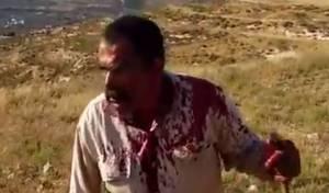 פלסטיני בעימותים