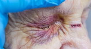 אילוסטרציה - שישה עצורים בחשד להתעללות בקשישים