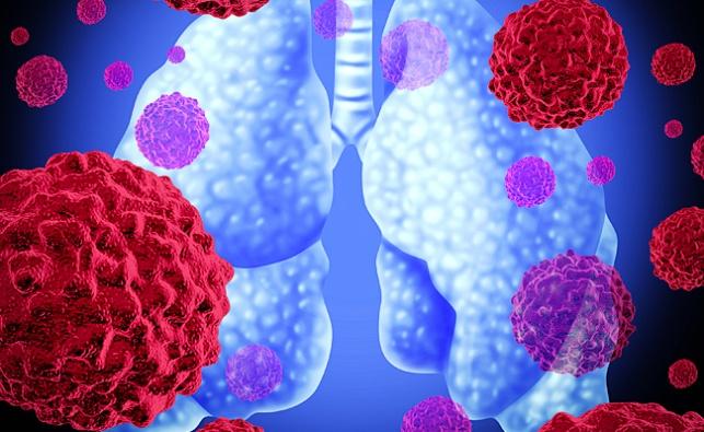 סרטן ריאות, המחשה