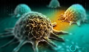 """הדמייה דיגיטלית של תאי סרטן - רופא שיקר למטופלים: """"יש לכם סרטן"""""""