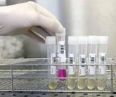 """מעבדה, תרופה, רפואה, ביוטק / צילום רויטרס - זטיק מקבוצת ביו לייט: """"עומדים בתקן CE למוצר לאבחון סרטן"""""""