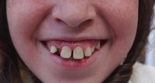 אין קשר בין השיניים לכתבה (צילום: פלאש 90)